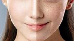 脸上的斑点用激光去掉后怎么护理才好
