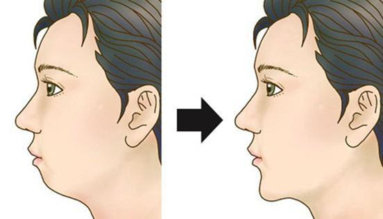 注射玻尿酸丰下巴效果怎么样
