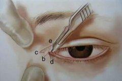 厦门做眼部开眼角手术会