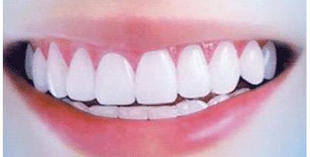 泉州牙齿矫正和传统镶牙有什么不一样