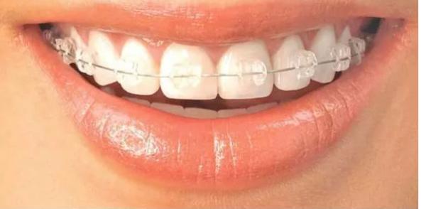 怎样避免牙齿矫正出现反弹呢