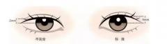 泉州割双眼皮手术需要多