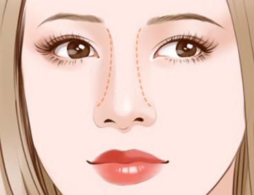 使用膨体材料隆鼻有什么优势