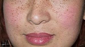 有哪些比较好的方法治疗脸上的雀斑