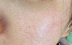 有什么好方法治疗毛孔粗
