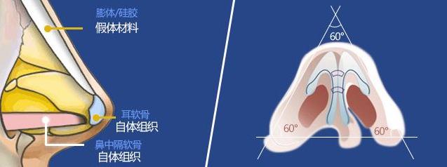 深圳整形医院做鼻整形要花多少钱