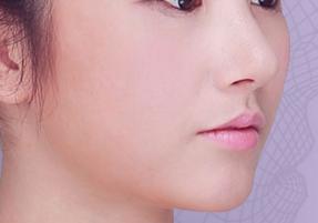 脂肪细胞填充脸部后会不会被吸收