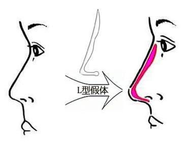 假体隆鼻可以保持多久