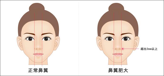 衡阳鼻翼缩小术后怎么护理