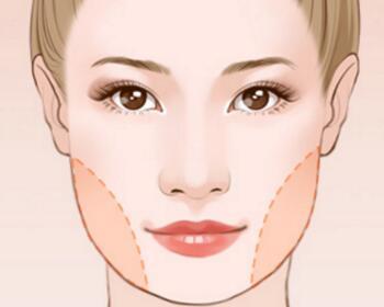 瘦脸针的效果时间长了会不会消失