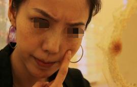 脸上有色斑能不能治愈