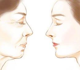 广州做自体脂肪面部除皱的效果好吗