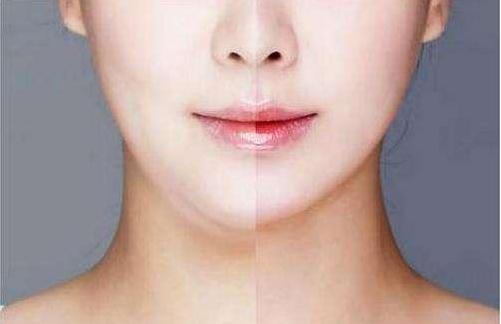 广州脸部抽脂前需注意哪些事项