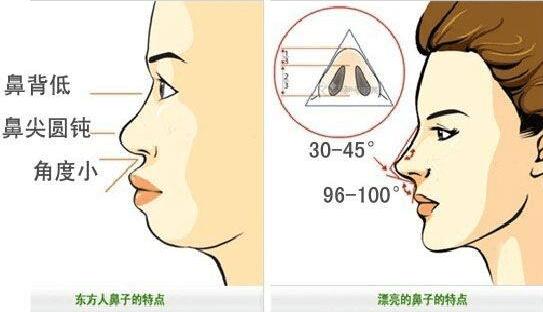 成都做玻尿酸隆鼻手术有哪些优势