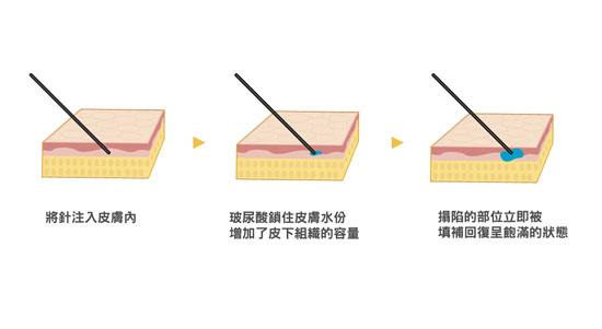 成都做玻尿酸除皱效果能维持多长时间