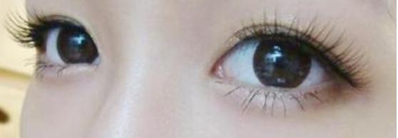 丑小鸭有一天也会变成白天鹅,所以只要自己有一颗变美的心,是可以让自己变得更加好看的喔!现实生活中就有很多单眼皮的妹子为了自己可以变得更加漂亮都会选择进行割双眼皮手术,因为眼睛有了双眼皮的衬托是会变得更加好看的喔。但是比较多的求美者都担心割双眼皮会很痛,关于这个问题,大家一起来了解一下吧!