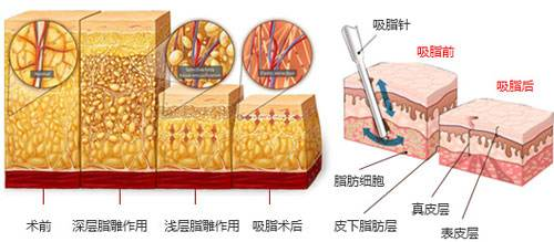 上海做吸脂减肥会对身体有危险吗