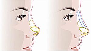 重庆做鼻翼收缩术一般多少钱