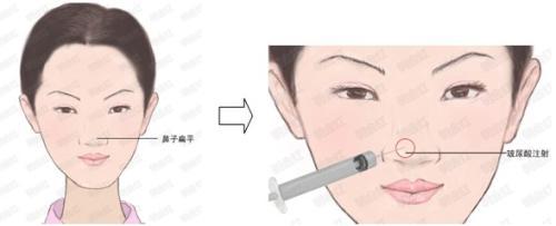 鼻翼收缩术