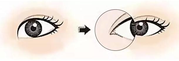 有人开眼角不肿的吗