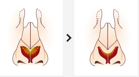 重庆做膨体隆鼻效果怎么样