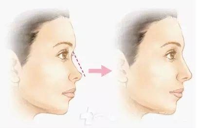 缩鼻头手术