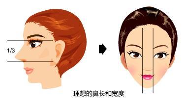 重庆做假体隆鼻失败术后需要多久恢复