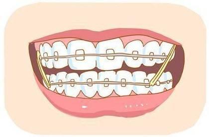 广州牙齿矫正隐形的效果好不好呢