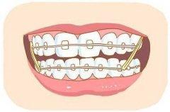 广州牙齿矫正隐形的效果