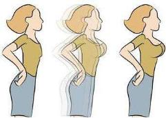 吸脂减肥术