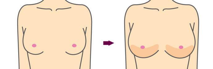 做胸部整形手术怎样判断整形的材料