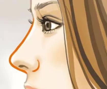 成都做硅胶隆鼻手术后假体会不会外露吗