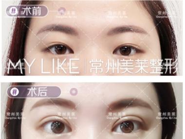 赵春飞专家双眼皮案例