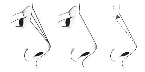 成都做假体隆鼻术大概价格是多少