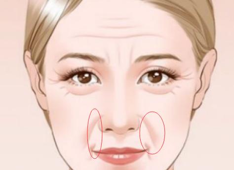 注射玻尿酸除皱