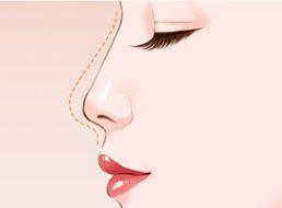天津做假体隆鼻会有哪些影响