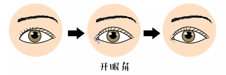 天津做开眼角失败了怎么办