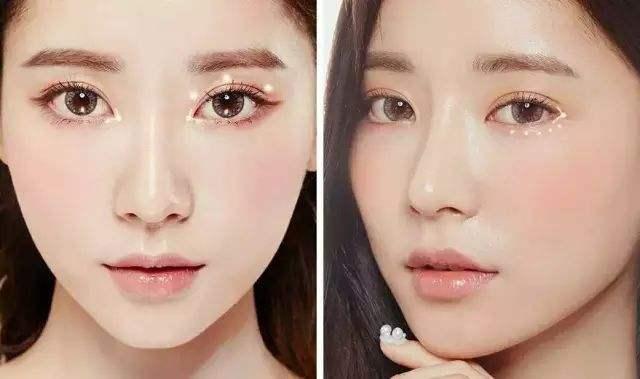深圳现在流行哪种割双眼皮方式?