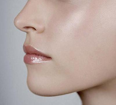上海做假体隆鼻子整形需要多少钱