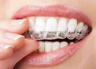 18岁牙齿矫正整形价格是多少