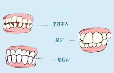 牙齿矫正整形