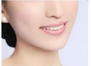 广州做鼻部整形手术会很痛吗