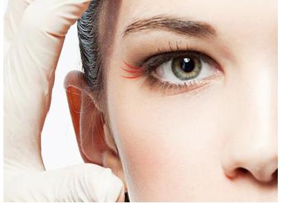 北京做膨体隆鼻手术效果能维持永久吗