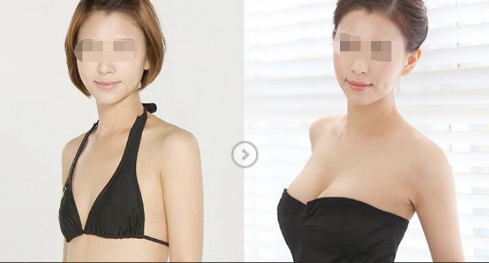天津硅胶假体隆胸手术多久能完全恢复
