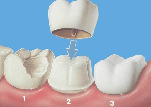 深圳进行牙齿修复要多少钱