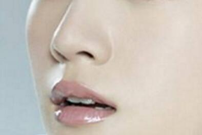 缩鼻翼手术后遗症会有哪些呢