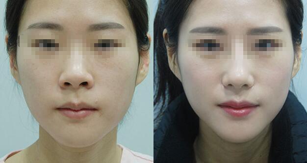 西安鼻翼缩小手术会不会留疤
