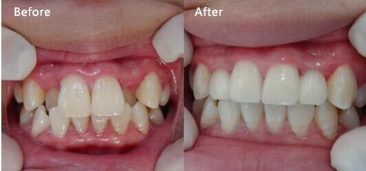 牙齿矫正哪种方法好