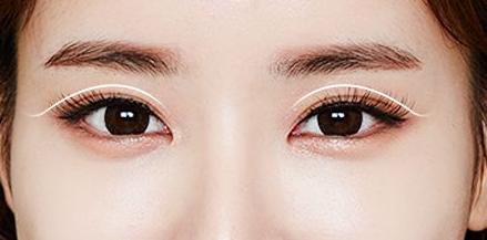 北京哪里做双眼皮效果好看自然
