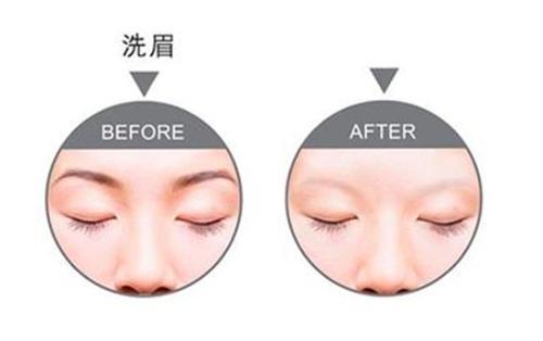 激光洗眉以后出现了疤痕怎么办